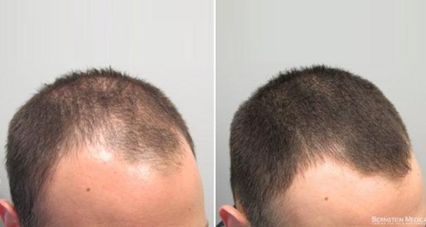 الصلع-صلع-الرأس-تساقط-الشعر-علاج-وقاية