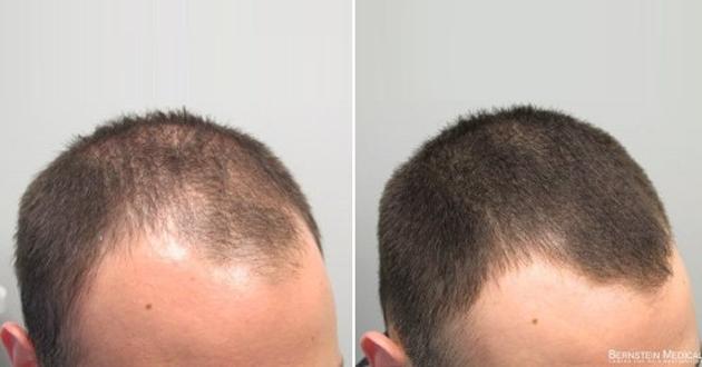 للرجال والنساء: إليكم الوقاية الحقيقة من الصلع وعلاج تساقط الشعر