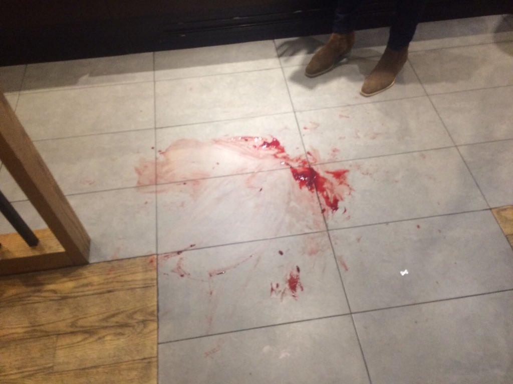 انفجار في بيروت وسقوط جرحى
