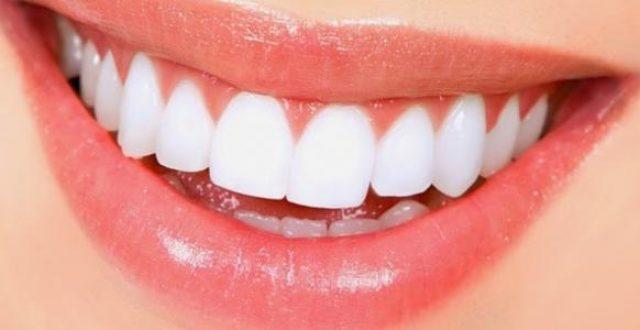 أضرار تبييض الأسنان على صحتها