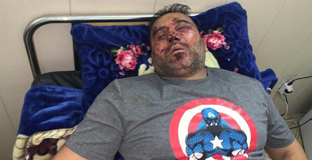 حماية مفتش عام وزارة الثقافة علي حميد تعتدي على مواطن بالضرب المبرح في منطقة الكرادة