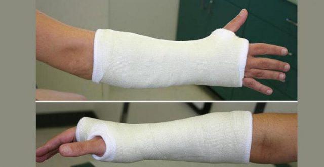 ضمادة جديدة لإصلاح أسرع لكسور العظام خلال 3 أسابيع فقط